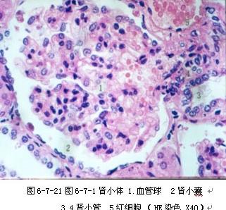 肾小管组织切片手绘图